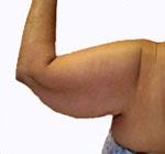 Arm-flab